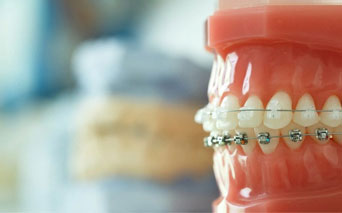 Dental Braces and Retainers | Dental Clinic in Evanston Illinois