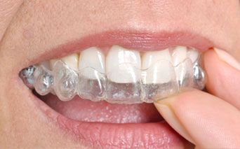Braces Alignment in Evanston Illinois